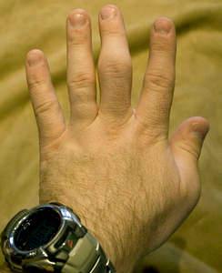 Боль опухоль в суставе пальца центр реабилитации после эндопротезирования суставов на новоспасском пер д3