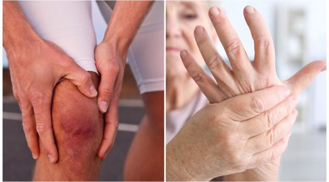Ранние признаки и наиболее частые симптомы артрита