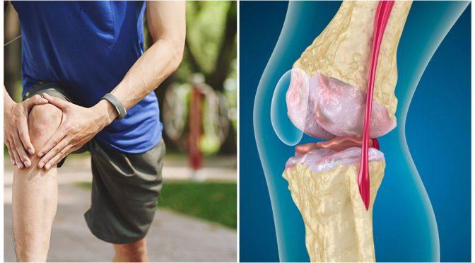 Артроз суставов — как лечить?