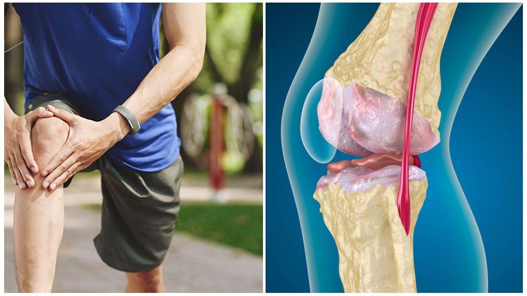 Как лечить артроз суставов — Суставы