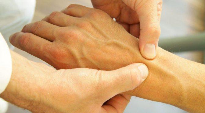 Артроз лучезапястного сустава - что нужно знать о болезни и лечении