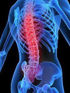 Дорсопатия позвоночника - что это такое и как лечить