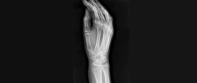 Как быстро восстановиться после перелома руки в лучезапястном суставе