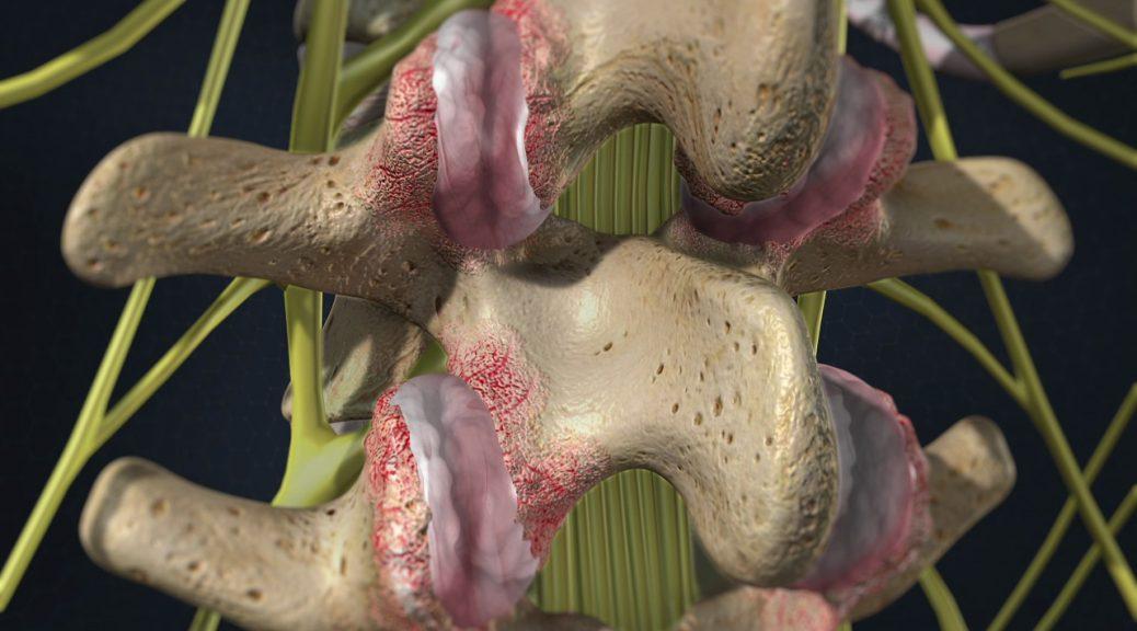 Если болят суставы причиной может стать гипертрофия