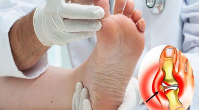 Воспалился сустав на пальце ноги, что делать?